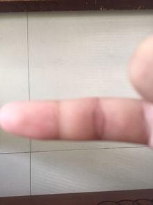 骨折 小指
