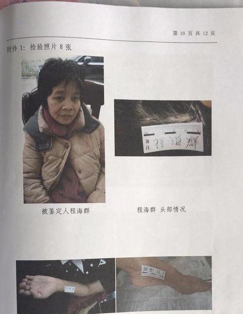 公安机关认定,梁某勇因肇事逃逸承担事故全部责任。