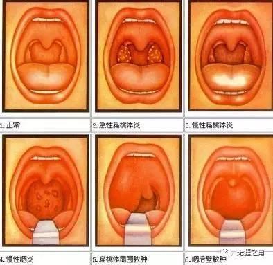 扁桃 炎 急性 腺