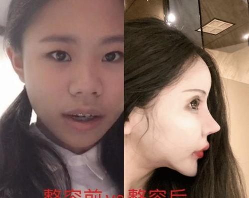 13岁女孩花费百万整容,网友对比明显,比如变脸
