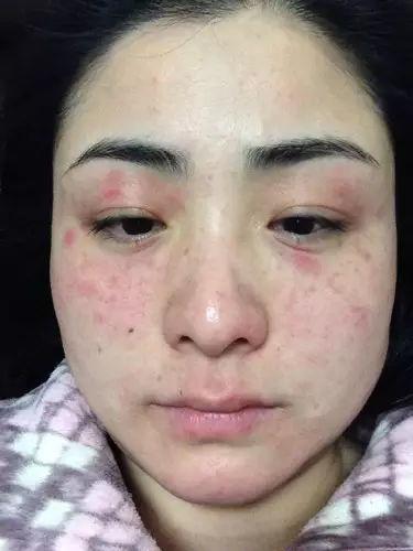 化妆出现过敏怎么办