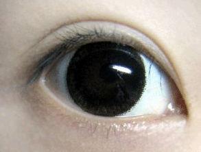 眼睛充血是什么原因,眼睛充血怎么办