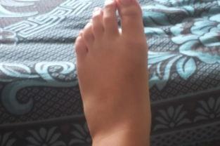 左脚脚外侧麻木是什么原因?  脚背与小腿前侧麻痛