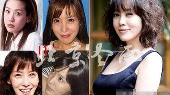 郑丽媛脸残李多海假脸连升级 揭韩国整容女星今昔美丑