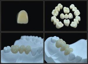 氧化锆全瓷牙多少钱一颗?