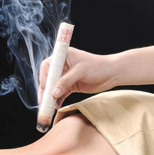 """艾灸--常用艾灸可提高你的""""颜值""""400  面部扁平疣艾灸位置"""