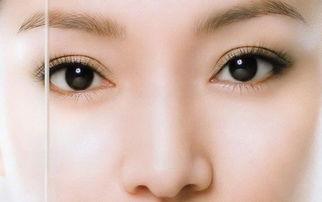 北京双眼皮手术后遗症