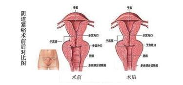 阴道紧缩有用吗,阴道紧缩手术有没有用
