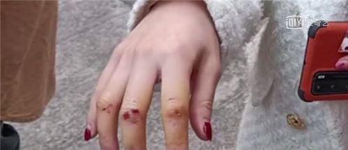 女子保护4岁女孩被斗牛犬咬伤网友气愤为何不严加看管