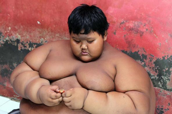 10岁胖娃重384斤成世界最重男孩