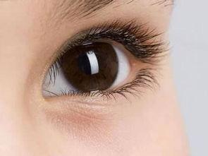 眼睛总是看东西模糊怎么回事