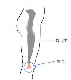 髂胫束:从髋部开始延伸,覆盖膝关节外侧到胫骨外侧表面的一个结缔组织;上方连接臀大肌等肌群,下方在膝盖处用以固定膝关节.