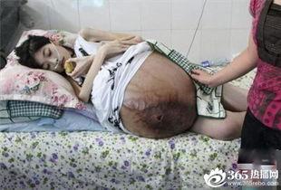 24岁漂亮女生怪病 肚子竟大如水缸 肚子痛得厉害拼命胀