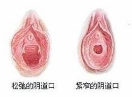 阴道美丽筒线虫病