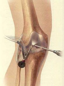 关节镜手术目前已经广泛应用于膝关节疾病诊断与治疗,一般手术选择腰椎硬膜外麻醉或者全身麻醉.