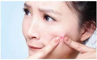 脸上容易起痘应该用什么样的化妆品