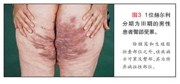 汗腺 化膿 炎 性 化膿性汗腺炎の治療法