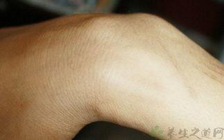 手腕疼痛是怎么回事