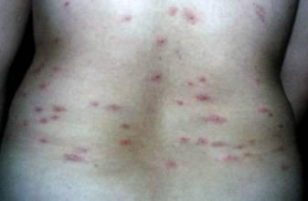荨麻疹病是什么症状