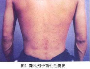 糠秕孢子菌毛囊炎