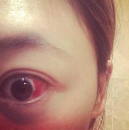 眼睛充血,眼睛充血怎么治疗好