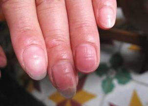 如何从指甲看疾病