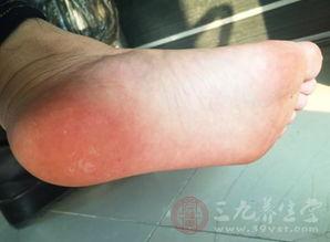 脚上长了个硬疙瘩 治脚上硬疙瘩的偏方