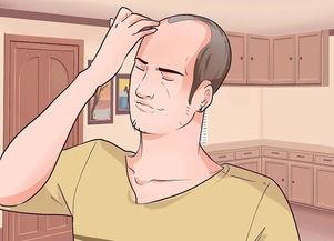 如何调整脱发和秃头