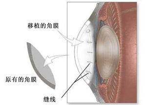 角膜移植材料的选取