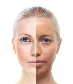 面部衰老对比-坚持艾灸,你也可以成为 冻龄女神