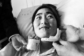 上海完成国内首例钛合金3D打印下颌骨植入