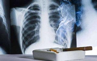 吸烟有害健康,尽早戒烟有益健康