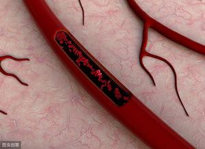 血粘稠的人,晨起有这4个表现,请接受事实:血栓找上门了!  血液粘稠的克星