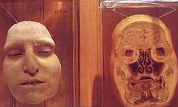 福尔马林是什么,与尸体共舞的不腐之秘 甲醛的水溶液