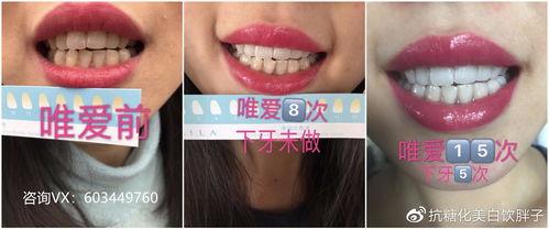 牙在前面的成语有哪些成语