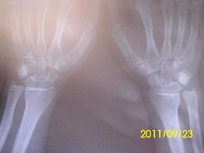 左手手腕疼痛