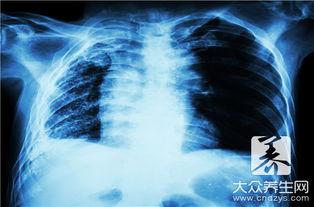 关于肺的知识